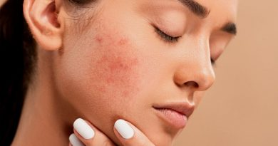 10 Tips to Get Rid of Pimples